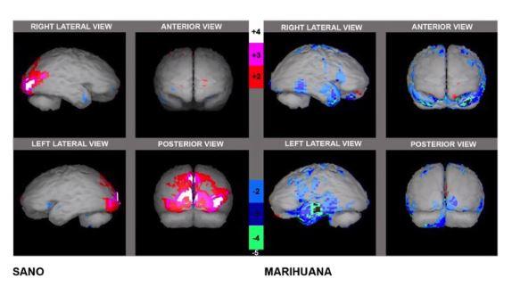 Cerebro sano vs marihuana